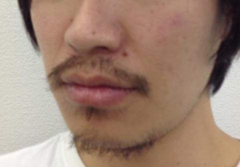汚い髭の男
